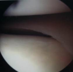 plusieurs ligamentoplastie genou