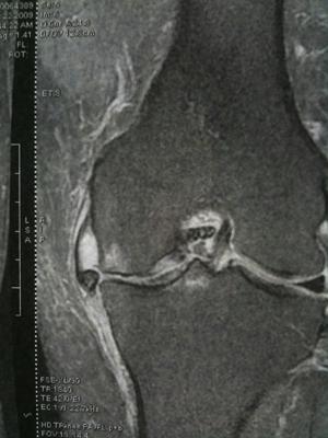 Chirurgie du menisque et ligaments genou les pathologies for Douleur exterieur genou