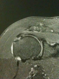 traitement kine bursite épaule