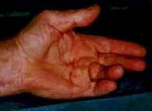 douloureux intérieur main droite et poignet