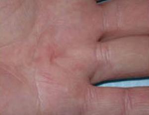 Pathologies courantes de la main - Comment enlever de la glue sur les mains ...